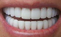 teeth-825x510